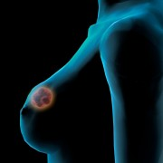3-D Mammography for breast cancer detection