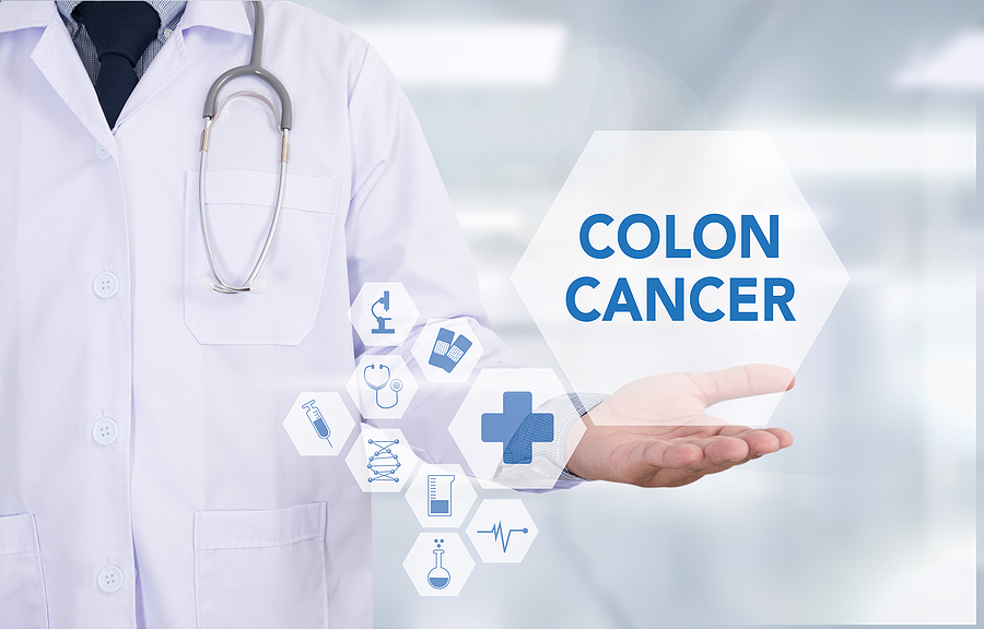 Rising Rates of Colorectal Cancer In Younger Age Groups